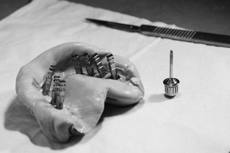 Cas pratiques dentaires
