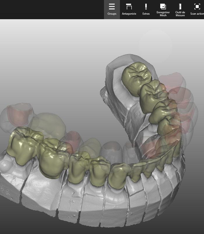Zircone Dentaire
