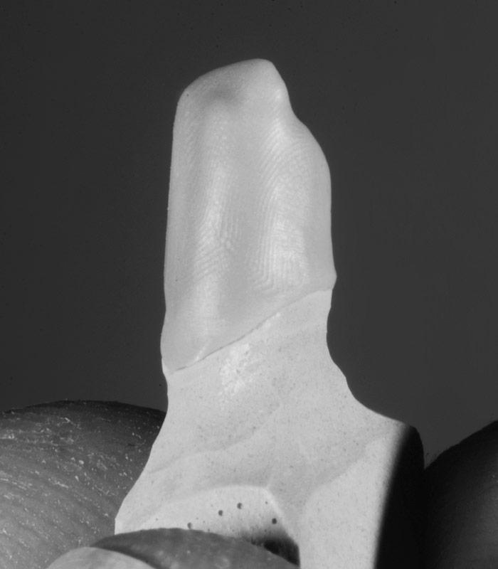 Zirkon Zahn