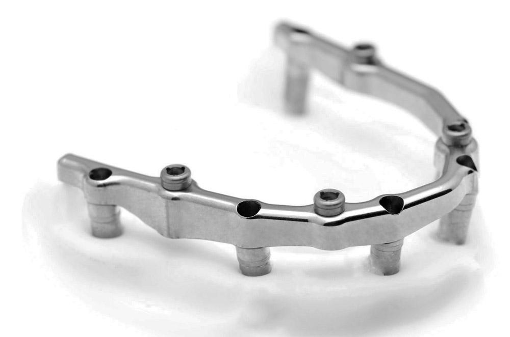 Prothèse Implant