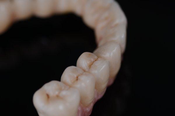 Restauration totale supérieure scellée sur piliers implantaires
